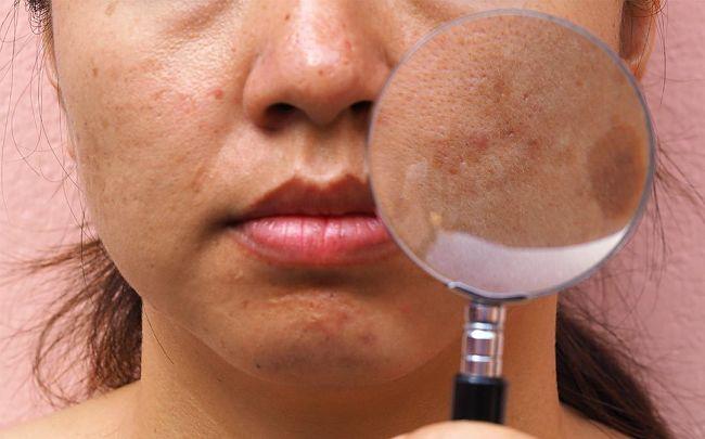 mujer con paño en la cara y problemas de melasma en la piel del rostro