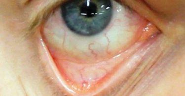 Los síntomas de la anemia
