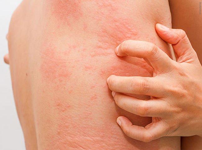 síntomas de la urticaria en el cuerpo