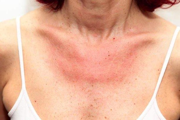 mujer con síntomas de alergia en la piel