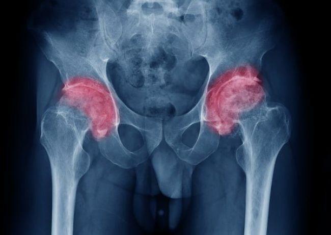 Padecimiento de artritis en las caderas