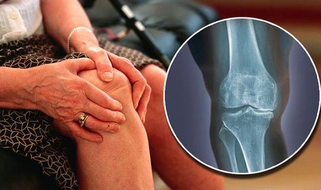 Mujer con dolores en las rodillas por osteoartrosis de rodilla