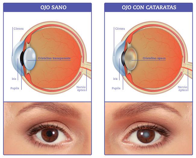 cómo se ve un ojo sano vs un ojo que presenta síntomas de cataratas