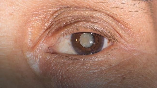 Una persona que presenta síntomas de cataratas en los ojos muy visibles