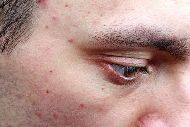 Las causas de la foliculitis y cómo se puede tratar