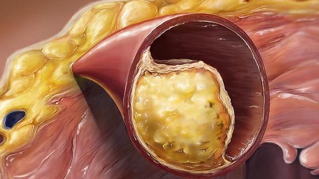 grasa obstruyendo las arterias