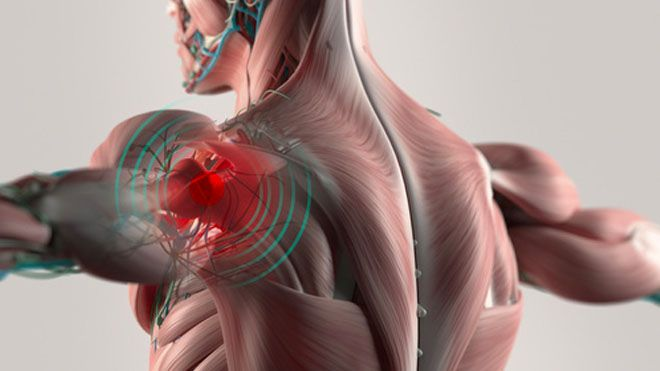 Síntomas de la distrofia muscular