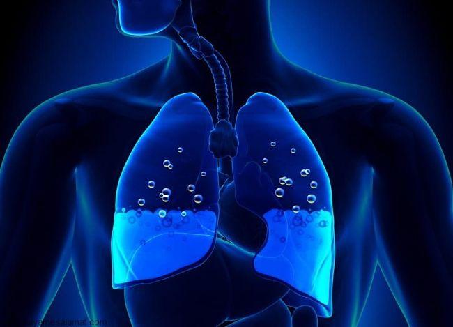 Síntomas del edema pulmonar y cuáles pueden ser sus causas