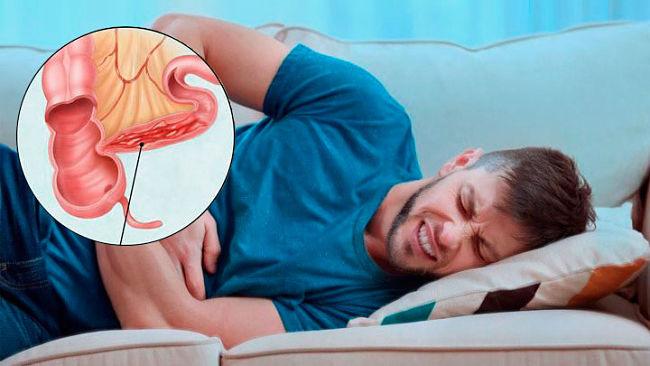 Joven que padece enfermedad de Crohn y sufre dolores abdominales