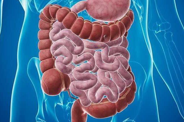 Causas de la enfermedad de Hirschsprung