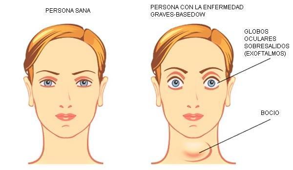 Síntomas de la enfermedad de graves y el hipertiroidismo