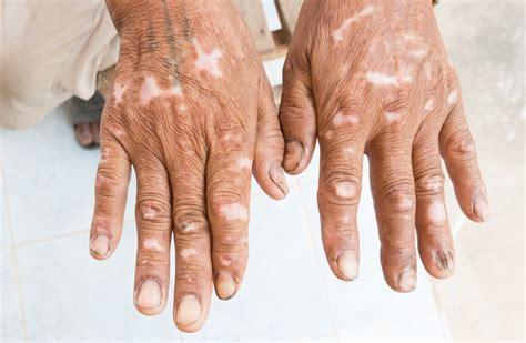 signos de esclerodermia en las manos