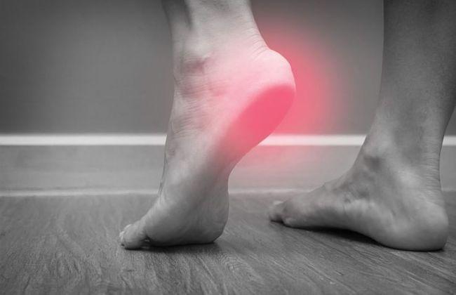 Dolor en los pies causado por espolón calcáneo