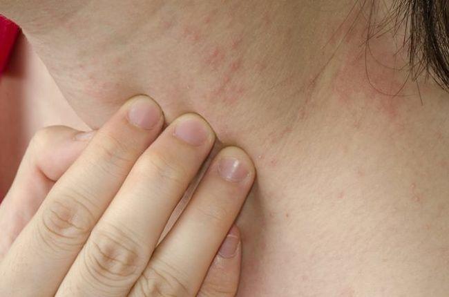Síntomas de intolerancia alimentaria presentes en la piel
