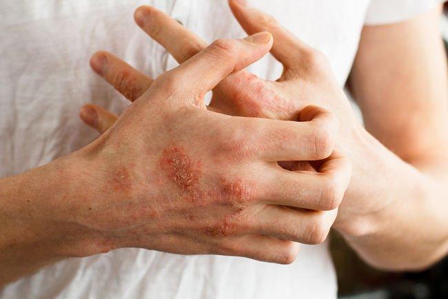 Una persona rascando sus manos con presencia de llagas y enrojecimiento por padecimiento de dermatitis atópica