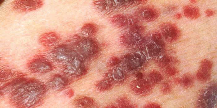 Manifestación del melanoma en la piel