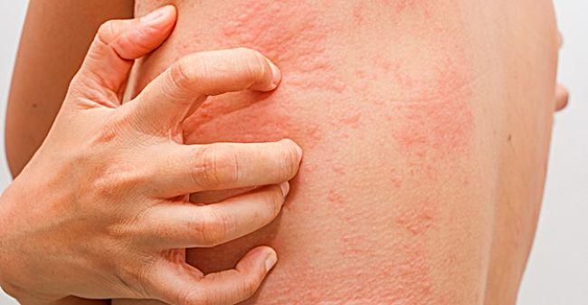 Reacciones adversas por el consumo de antibióticos