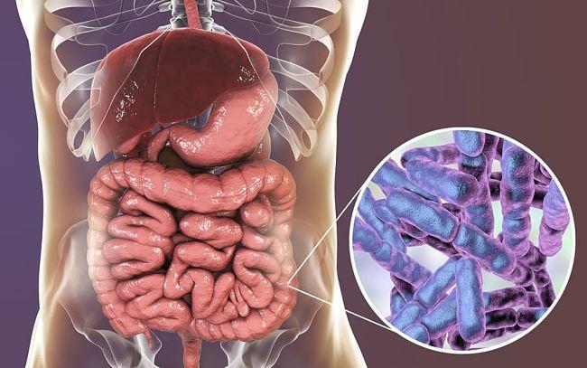 Los síntomas del sobrecrecimiento bacteriano o SIBO