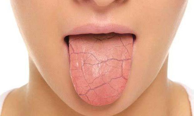 Una mujer que padece el síndrome de boca seca