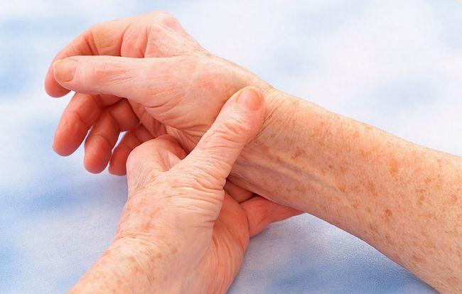 Mujer con síntomas de la fiebre reumática