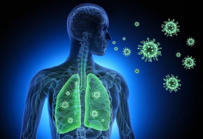 Síntomas de la neumonía y cómo puede afectar la salud