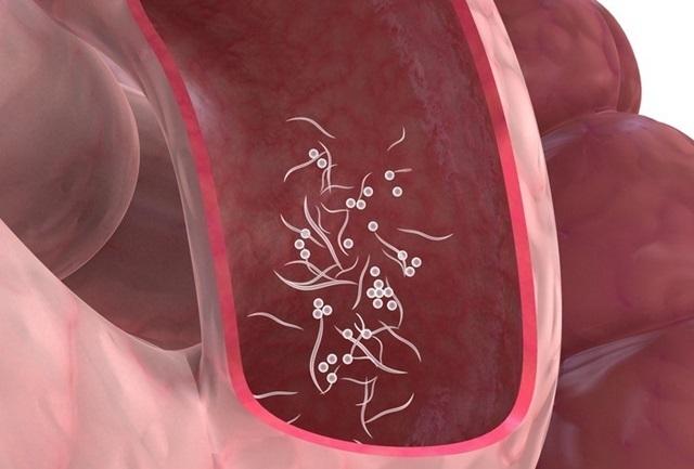 Los síntomas de la presencia de parásitos en el intestino