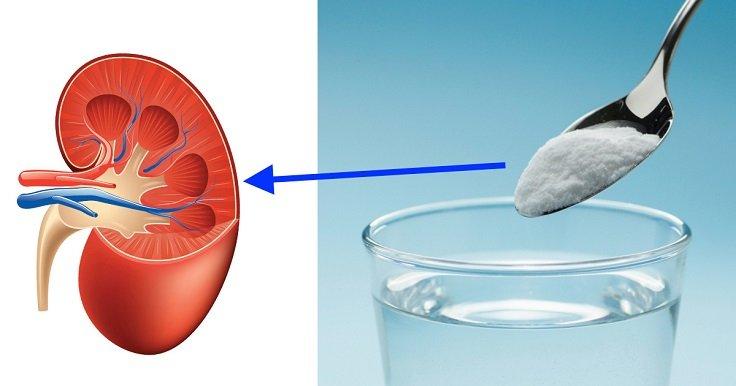 tratar enfermedades del riñón con bicarbonato de sodio
