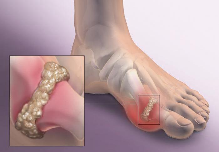 Síntomas de gota y manifestación de cristales de ácido úrico en los pies