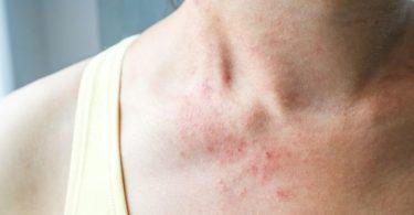 Síntomas de alergia al Alfa Gal