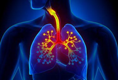 Sintomas de inflamación de las vías respiratorias por bronquitis aguda