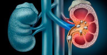 Alimentos para los cálculos en los riñones
