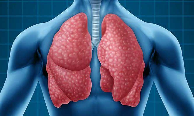 causas de la bronconeumonía