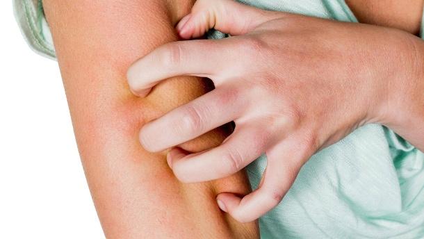 Conoce las causas de la sarna y cómo puedes tratarla naturalmente