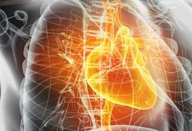 las causas de la insuficiencia mitral