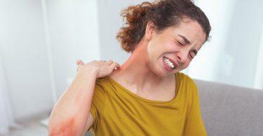 Mujer con manifestaciones cutaneas por alergia a los mariscos