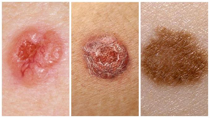 Apariencia del cáncer de piel