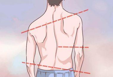 Cuáles son los síntomas y causas de la escoliosis