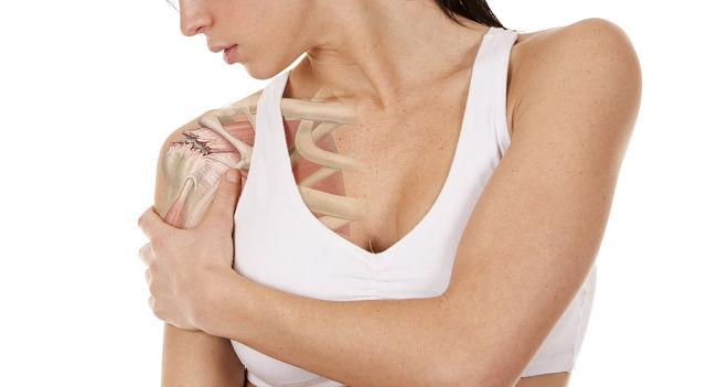 Cómo se puede tratar la tendinitis en el hombro