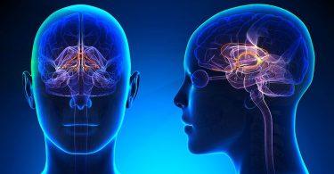 imagen de un tumor cerebral en la mujer