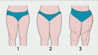 Las diferentes etapas del lipoedema