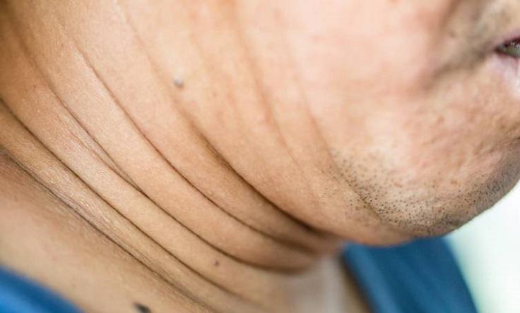 grasa en el cuello