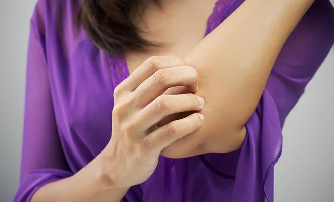 Conoce los síntomas de la anafilaxia