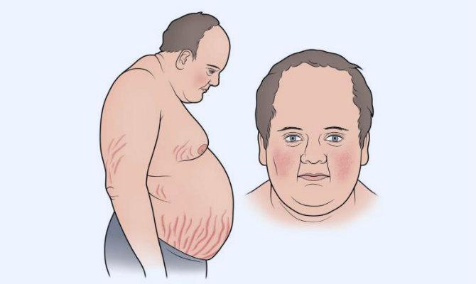 Síntomas del síndrome de Cushing