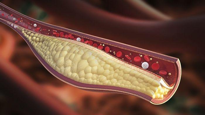 Mitos sobre el colesterol