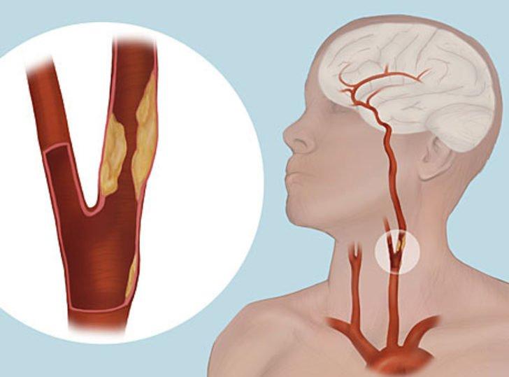 Conoce los factores que causan problemas de arterias obstruidas