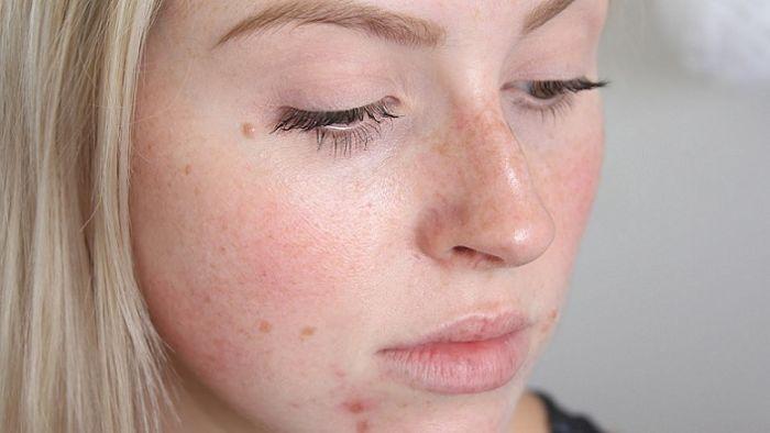 Una chica joven con acné en su rostro