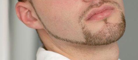 barba ancla para calvos