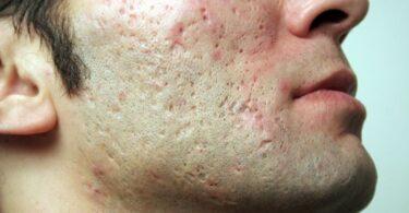 Hombre con cicatrices del acné