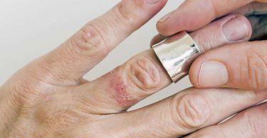 Síntomas de alergia al níquel