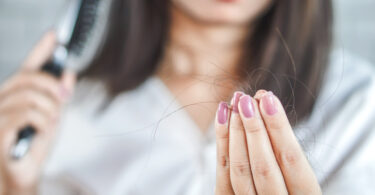 Mujer que sufre de caída del cabello
